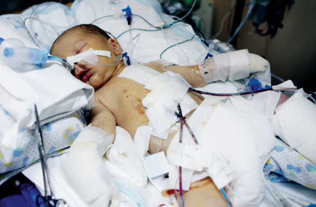 الفخرو يشارك أحد الأطفال فرحته بإجراء العملية الجراحية