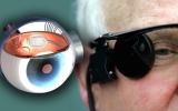 الصورة: «العين الإلكترونية» فرصة جديدة للمصابين بالعمى