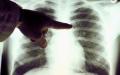 الصورة: الصورة: السرطان في تزايد والتدخين من أهم عوامل الخطر