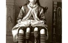 الصورة: «جوزيفين ميرتل» المرأة ذات الأربعة أرجل