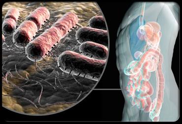 الصورة : لتواجد الطبيعي لميكروب الإشيريشيا كولاي E-Coli في القولون.