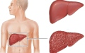 الصورة: الصورة: لقاح فموي من الذرة لالتهاب الكبد B