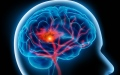 الصورة: الصورة: مرضى السكتة الدماغية يواجهون خطر الانتحار