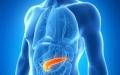 الصورة: الصورة: سرطان البنكرياس أعراض عامة تتطلب التشخيص الدقيق