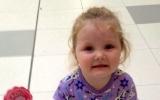 """الصورة: مرض غامض يفقد الطفلة """"سومر"""" بصرها وسمعها وقدرتها على الكلام"""