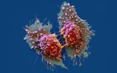 الصورة: السرطان..   أين تكمن الخطـورة واحــتمالات الإصابة؟