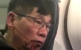 الصورة: بعد فضيحة الفيديو.. رئيس «يونايتد إيرلاينز» يعتذر عن سحل راكب