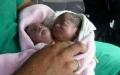 الصورة: الصورة: حالة طبية نادرة .. ولادة طفلة سورية برأسين