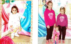 الصورة: «أريج» طفلة جزائرية حيرت الأطباء