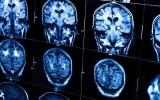 الصورة: الذكاء قد يتسبب في إصابتك بسرطان الدماغ!