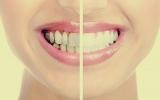 الصورة: احذر غسيل الأسنان في هذا التوقيت يصيبها بالتسوس