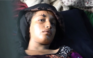 الصورة: خولة شاهد على إجرام مليشيا الحوثي الإيرانية