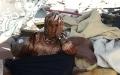 الصورة: غزة في مواجهة الحصار.. ويلات تنذر بكوارث محققة