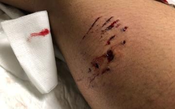 الصورة: كلب يهاجم مراهقاً ويصيبه في رقبته وساقه بالفجيرة