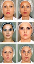 ثيرماج تقنية ترسم شكلا جديدا لمعالم الوجه فكر وفن البيان