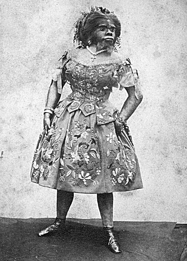 صورة لجثة جوليا بسترانا المحنطة