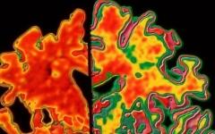 الصورة: دراسة : إصابات الدماغ تزيد احتمال الإصابة بالخرف