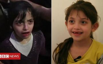 الصورة: بالفيديو.. طفلة ناجية من قصف دوما الكيماوي تروي تفاصيل ما حدث