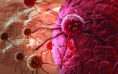 الصورة: عقار مضاد للالتهابات يقلّل عودة الأورام بعد جراحات سرطان الثدي