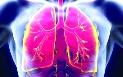 الصورة: 5 جينات وراء ارتفاع ضغط الدم الشرياني الرئوي