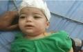 """الصورة: """"معجزة طبية"""" تنقذ رضيعاً من سيخ حديدي اخترق رأسه"""