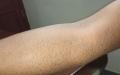 الصورة: الصـوم علاج مثـالي لأمـراض حساسية الجلد