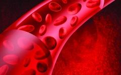 الصورة: نصائح لمرضى ارتفاع ضغط الدم