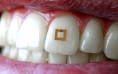 الصورة: وشم أسنان يستشعر السرطان