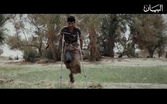 الصورة: ألغام الحوثي تستهدف المدنيين الأبرياء
