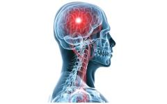 الصورة: الصورة: تمدد الأوعية الدموية بالدماغ..متى يبدأ الخطر ؟