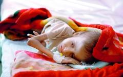الصورة: الصورة: إشادة عالمية بدعم الإمارات والسعودية لمكافحة الكوليرا باليمن