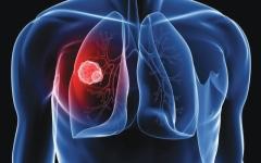 الصورة: الصورة: الوذمة الرئوية.. سائل في الرئتين وصعوبة في التنفس