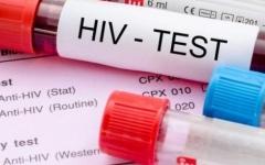 الصورة: الصورة: إصابة  160 ألف طفل ومراهق بالإيدز خلال العام الماضي