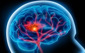 الصورة: الصورة: كيف تتجنب التعرض للسكتة الدماغية؟