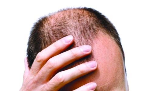 الصورة: الصورة: تقنية رخيصة تحفز نمو الشعر