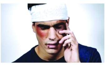 الصورة: الصورة: عقار يقلص الوفيات الناجمة عن إصابات الرأس