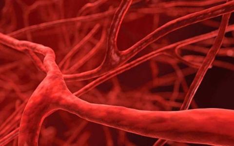 الصورة: الصورة: ما العلاقة بين حالة الأوعية الدموية والسرطان؟