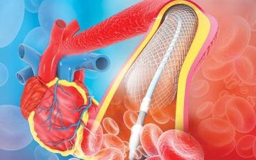 الصورة: الصورة: الدعامات ليست أفضل من الأدوية للكثير من مرضى القلب