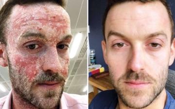 الصورة: الصورة: رجل يشفى من الأكزيما بحرمان بشرته من الترطيب
