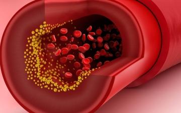 الصورة: الصورة: ماذا يحدث عند ارتفاع الكوليسترول؟