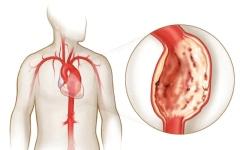 الصورة: الصورة: العوامل الوراثية ليست مسؤولة عن تصلب وتلف الأوعية الدموية