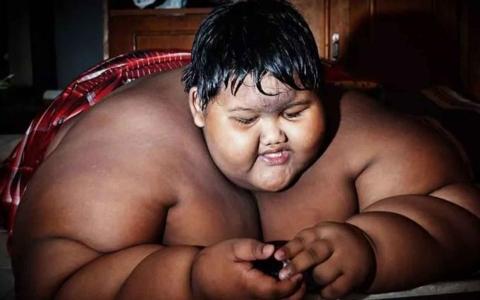 الصورة: الصورة: شاهد.. طفل إندونيسيا الضخم كيف أصبح