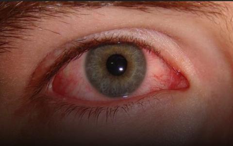 الصورة: الصورة: 4 علامات تظهر على العين تؤكد الإصابة بكورونا