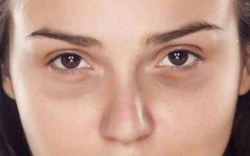 الصورة: الصورة: شرائح البطاطس للقضاء على هالات العين السوداء