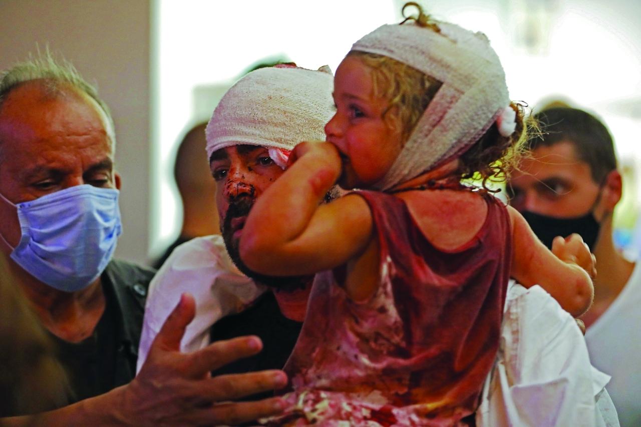الصورة : طفل ووالده بين المصابين في أحد مستشفيات بيروت   أ.ف.ب