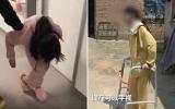 """الصورة: الصورة: بالفيديو.. """"حدباء الصين'' تتمكن أخيرا من المشي مستقيمة بعد عملية ثورية"""