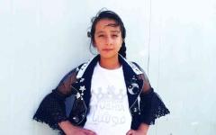 الصورة: الصورة: الطفلة السورية هبة تبتهج بتحقيق حلمها المستحيل في استعادة أذنيها