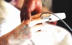 الصورة: الصورة: تقنية لمعرفة القدرة على استعادة الوعي بعد الغيبوبة