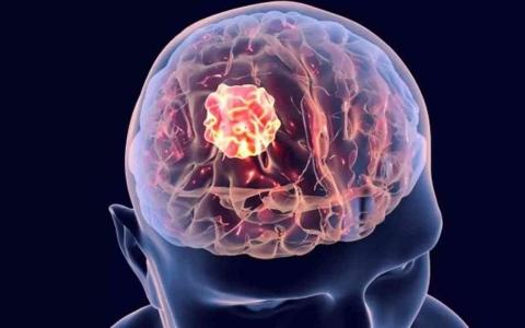 الصورة: الصورة: علامة غير متوقعة على وجود ورم في الدماغ