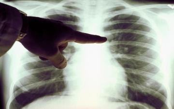 الصورة: الصورة: ثلثا المتعافين من كورونا يعانون أضراراً في الرئة